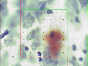 A disector probe simulated in a microscope for computerized stereology can be used to analyze tissue samples in an unbiased manner where a square will be placed over a region of interest, and systematically counted.